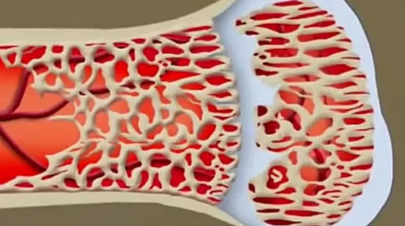 Ученые: кости в организме растут сами по себе. 18022.jpeg