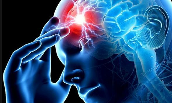 Инсульт: как предупредить, как лечить,  как восстанавливаться. инсульт
