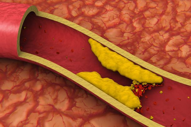 Как  снизить холестерин и не голодать Видео. холестерин