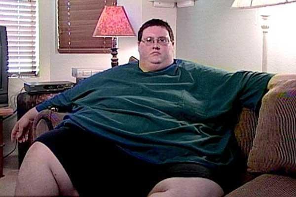 Морбидное ожирение: поможет только хирург?. 11078.jpeg