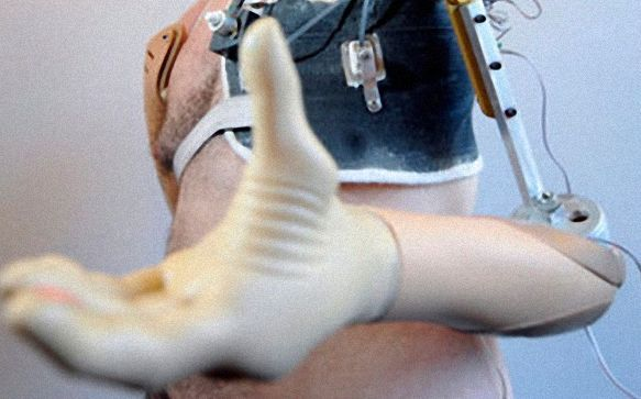 Скоро и протезы смогут чувствовать. протез