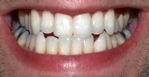 Плохие зубы - это больное сердце. 9093.jpeg