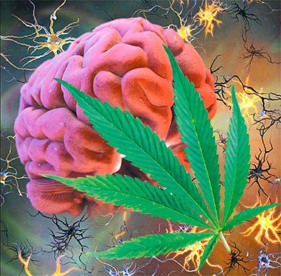 Могут ли каннабиноиды облегчить симптомы рассеянного склероза?. 16212.jpeg