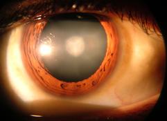 Новый подход в хирургии катаракты. 9238.png