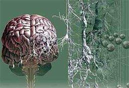 Количество страдающих болезнью Альцгеймера через 15 лет может увеличиться на треть. 10291.jpeg