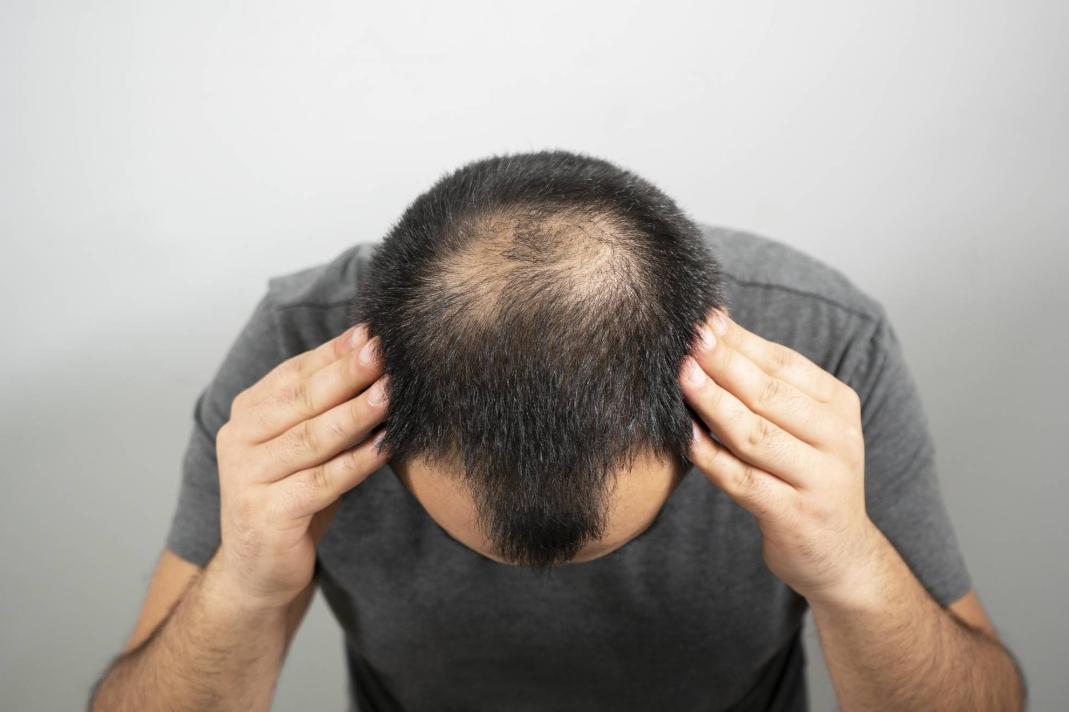 Найдены стволовые клетки для регенерации волос