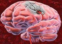 Вечный вопрос: как предотвратить инсульт?. 9318.jpeg