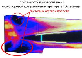 Препарат из Пензы излечивает остеопороз. 8463.jpeg