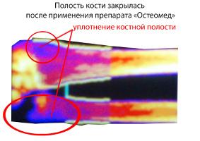Препарат из Пензы излечивает остеопороз. 8464.jpeg