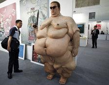 Морбидное ожирение: поможет только хирург?. 7540.jpeg