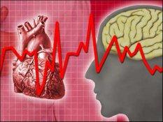 Медпомощь при сердечном приступе: необходима доработка. 9573.jpeg