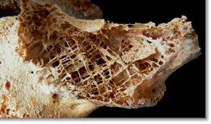 Мировое сообщество отметило Всемирный день борьбы с остеопорозом. 9578.jpeg