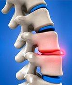Болит спина, или Как правильно беречь позвоночник. остеохондроз