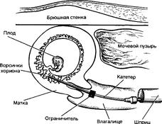 Беременность: проводим хорионбиопсию. 8938.png