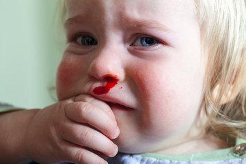Кровотечение из носа у ребенка: когда обратиться к врачу?