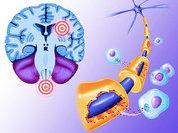Рассеянный склероз будут лечить по-новому?
