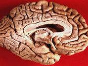Наш мозг нас снова одурачил?