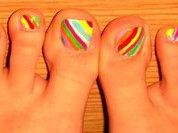 Почему растут полосатые ногти или как лечить грибок на ногтях?