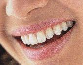 Блестящая улыбка