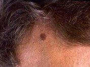 Инновационные методы лечения рака кожи