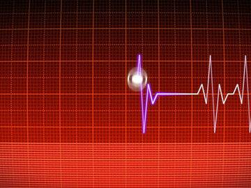 Специалисты из Австралии назвали способ нормализации сердечного ритма
