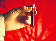 Плазмаферез - очищение крови. Как, для чего? Видео