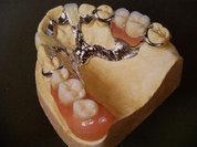 Восстанавливаем зубы: за сколько и как?